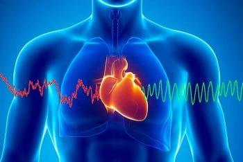 Exercice de cohérence cardiaque Pau